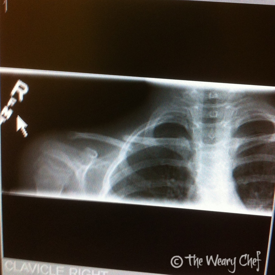 Mega Clavicle Fracture
